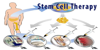 Read Cost Of Stem Cell Therapy For Hair Loss In India Online